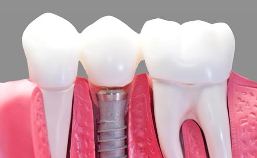 dca-blog_dental-implant-model